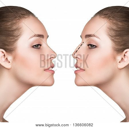 Female face, before and after cosmetic nose surgery isolated on white
