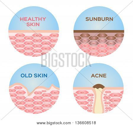 healthy skin , sunburn , old skin and acne 4 set vector