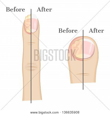 Fungal infection of the nails Illustration Before and After