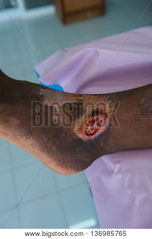 Wound infection and bleed in the leg , closeup