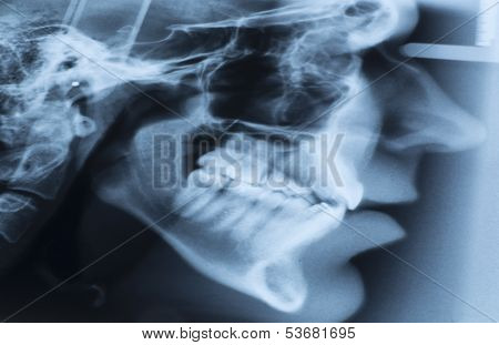 Lateral cephalometric radiograph