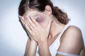 stock photo of bruises  - Mutilated women cover her bruised face with shame - JPG