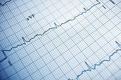 pic of electrocardiogram  - Close up of an electrocardiogram in paper form - JPG