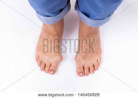a woman's legs with bunions stand on a white