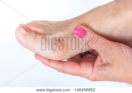 women hand holding the foot with painful bunion