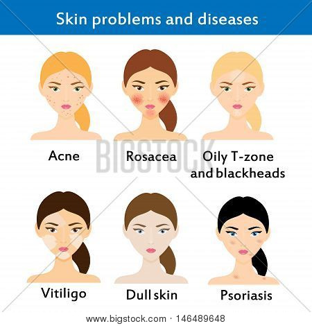 Skin problems and diseases. Acne rosacea vititligo and others. Vector illustration