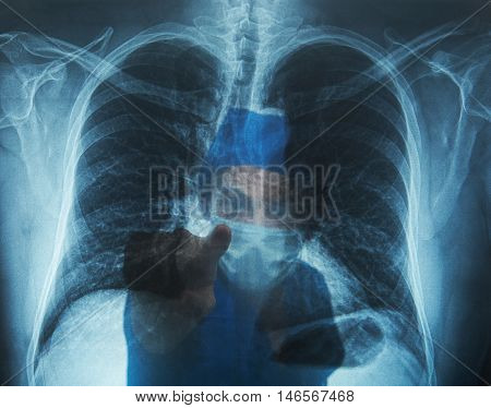 Doctor Pointing With Finger