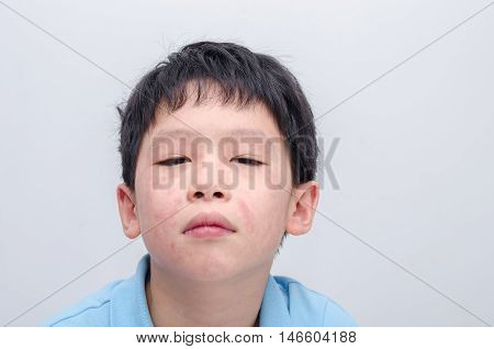 Closeup face of young asian boy with rash from allergy