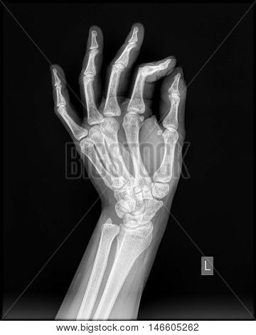 Left hand x-ray in lateral view of healthy subject