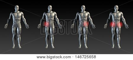 Hip Injury with Red Glow on Area Series 3D Render
