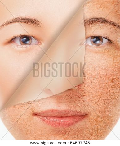 Smiling Woman With New Smooth Skin