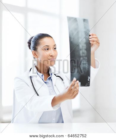 healthcare, medical and radiology concept - african doctor looking at x-ray