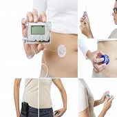 image of insert  - insulin pump collage consisting of six pictures - JPG