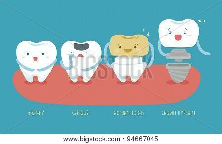 Healthy tooth ,carious ,golden tooth and crown implant of dental