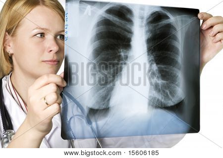 Doctor examining a lung xray