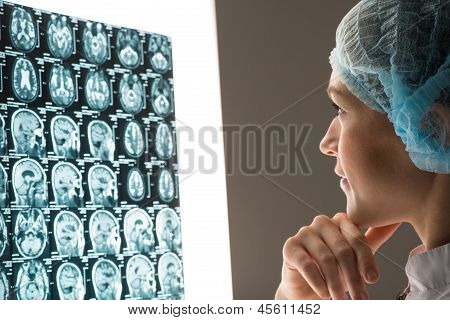 doctor looking at the x-ray