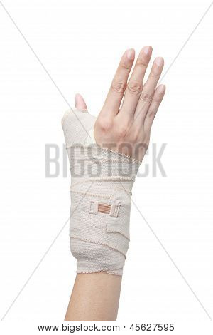 Broken Woman Arm In A Cast
