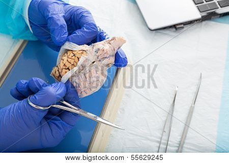 Pathologist Opening A Tissue Sample In The Lab
