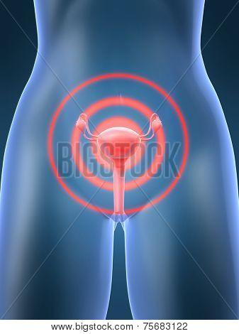 uterus inflammation