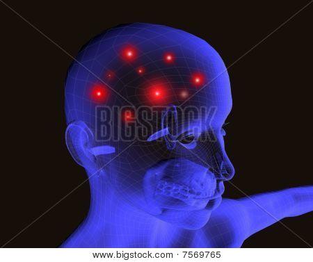 Radiografia headache