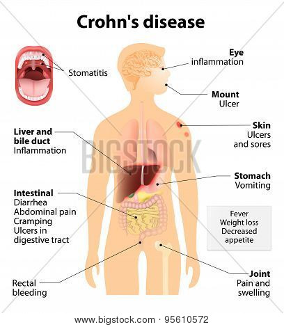 Crohn's Disease Or Crohn Syndrome
