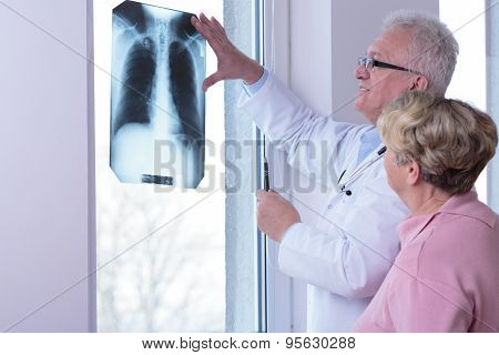Woman With Healthy Lungs