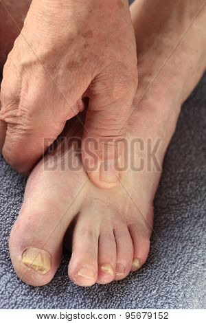 Man has hand on foot with toenail fungal infection