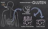 stock photo of intestines  - Intestinal Damage of Gluten on a Blackboard - JPG