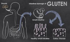 picture of intestines  - Intestinal Damage of Gluten on a Blackboard - JPG