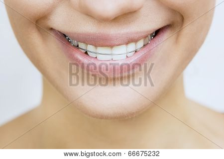 Retainer For Teeth - Beautiful Smiling Girl With Retainer For Teeth