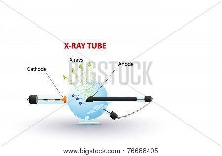 x-ray tube