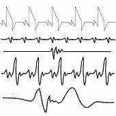 foto of electrocardiogram  - illustration with electrocardiogram set on white background - JPG