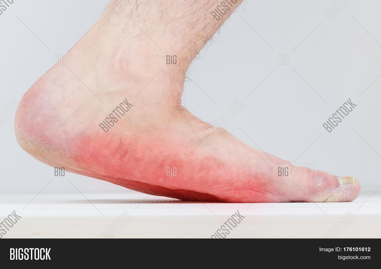 Men with signs of flatfoot foot and nail fungus. Foot Diseases ...