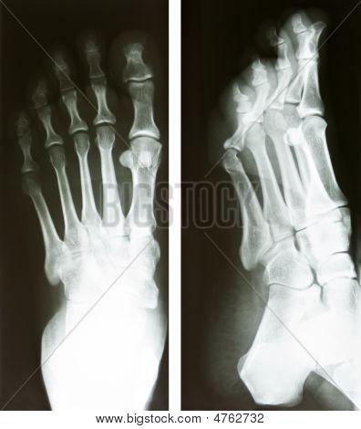 Radiografia do pé
