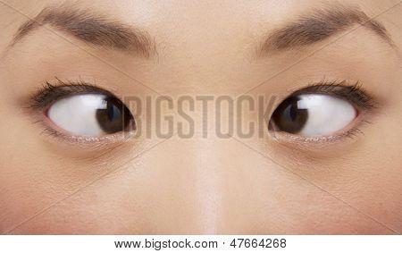 Closeup extrema de joven bizca