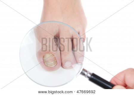 Doctor Dermatologist Examines The Nail On The Presence Of The Fungus, Eczema. Close-up.