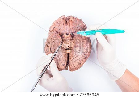 Human Brain Dissection