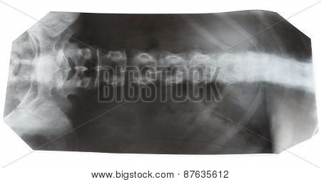 X-ray Photo Of Human Spinal Column Isolated