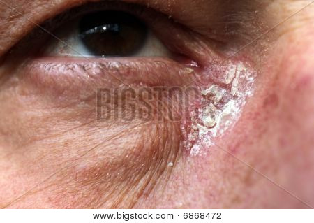 Psoriasis - Psoriasis In The Corner Of My Eye
