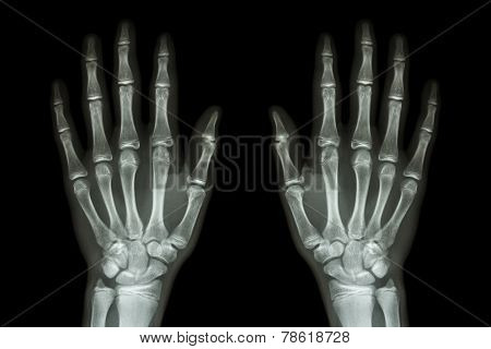 X-ray Normal Human Hands (front) On Black Background