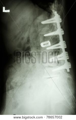 Lumbar Spine With Pedicle Screw Fixation