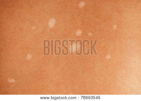 Pigment Spots