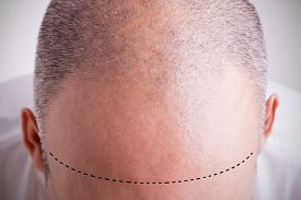 stock photo of male pattern baldness  - Top view of a men - JPG