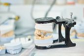 stock photo of prosthesis  - prosthetic dentistry concept - JPG