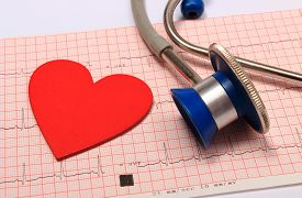 foto of ekg  - Medical stethoscope electrocardiogram graph and heart shape ekg heart rhythm medicine concept - JPG