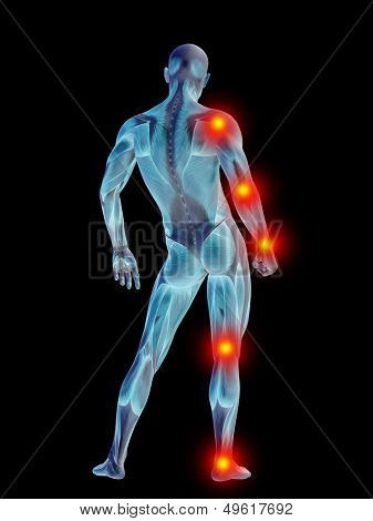 High resolution concept or conceptual 3D human anatomy body with pain isolated on black background as a metaphor to health,medicine,medical,biology,osteoporosis,arthritis,joint,inflammation or ache