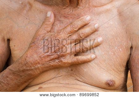 Old Asian Man With Health Problem