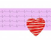 picture of electrocardiogram  - Heart analysis electrocardiogram graph  - JPG