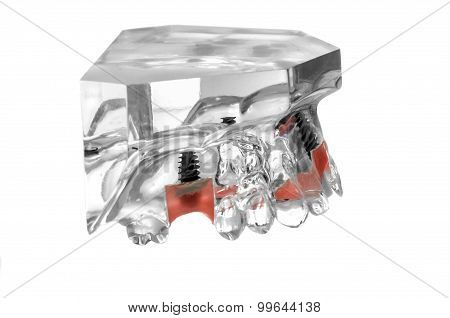 Glass Jaw Model