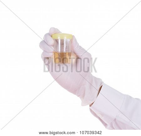 Doctor's Hand In Gloves Holding A Transparent Container With The Analysis Of Urine